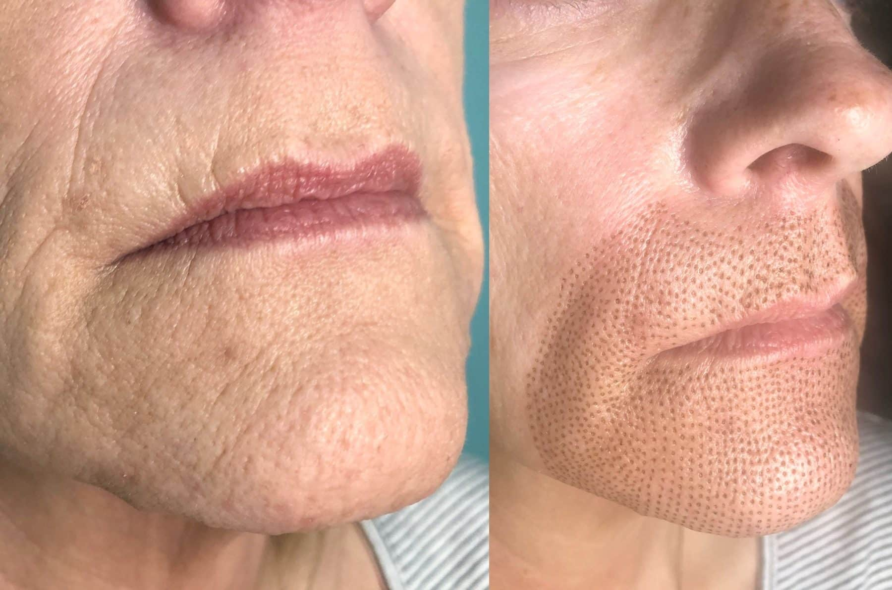 Fibroblast Plasma Skin Tightening